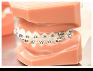 歯の矯正ワイヤー