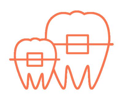 小児矯正歯科