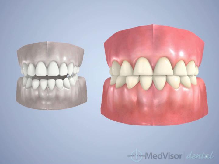 歯ぎしりする歯