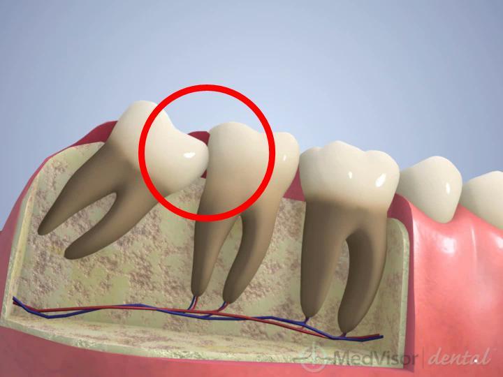 隣の歯への影響