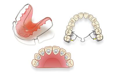 backside orthodontics