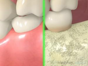 歯周病の進行前