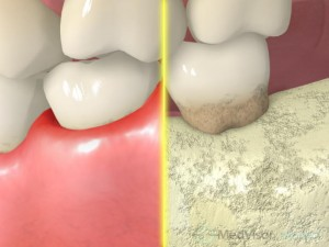歯周病の進行1