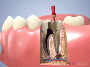 歯根治療の過程1
