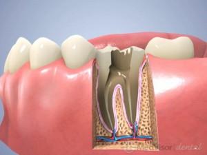 about 歯根治療の過程2