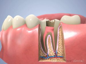 歯根治療の過程3