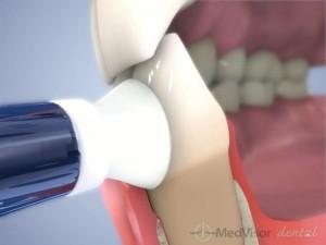 虫歯予防の治療