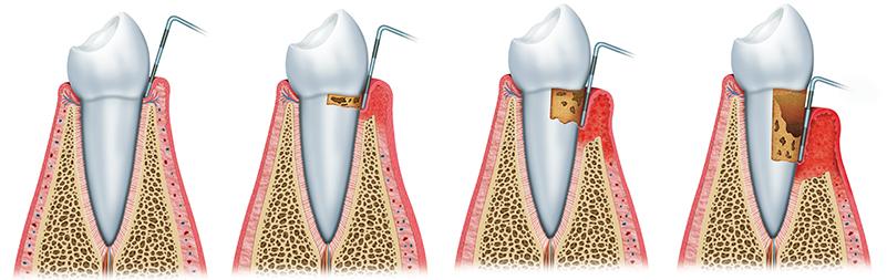歯茎が不健康な状態